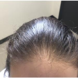 Łysienie androgenowe - kuracja CRLAB i Laseroterapia - PRZED