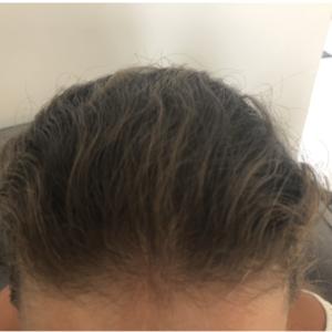 Łysienie androgenowe - kuracja CRLAB i Laseroterapia - PO