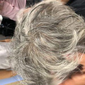 Łysienie androgenowe - System uzupełniania włosów CNC - PO
