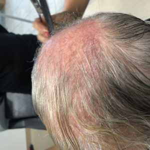 Łysienie androgenowe - System uzupełniania włosów CNC - PRZED